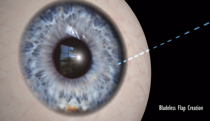 Femtosecond Laser from Behler Eye & Laser center