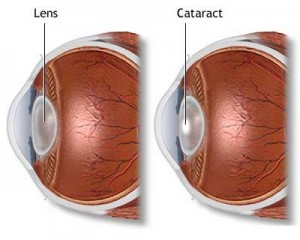 Cataract Surgery Treatment from Behler Eye & Laser Center