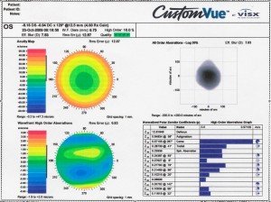 LASIK Customvue from Behler Eye & Laser Center